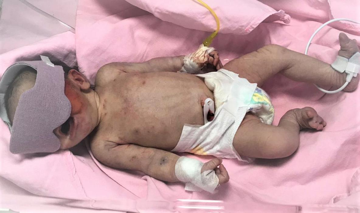Çöpte bulunan bebek yaşam savaşı veriyor
