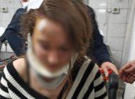 Muşta İle Genç Kıza Saldırdı 'Başkasına Benzettim' Dedi